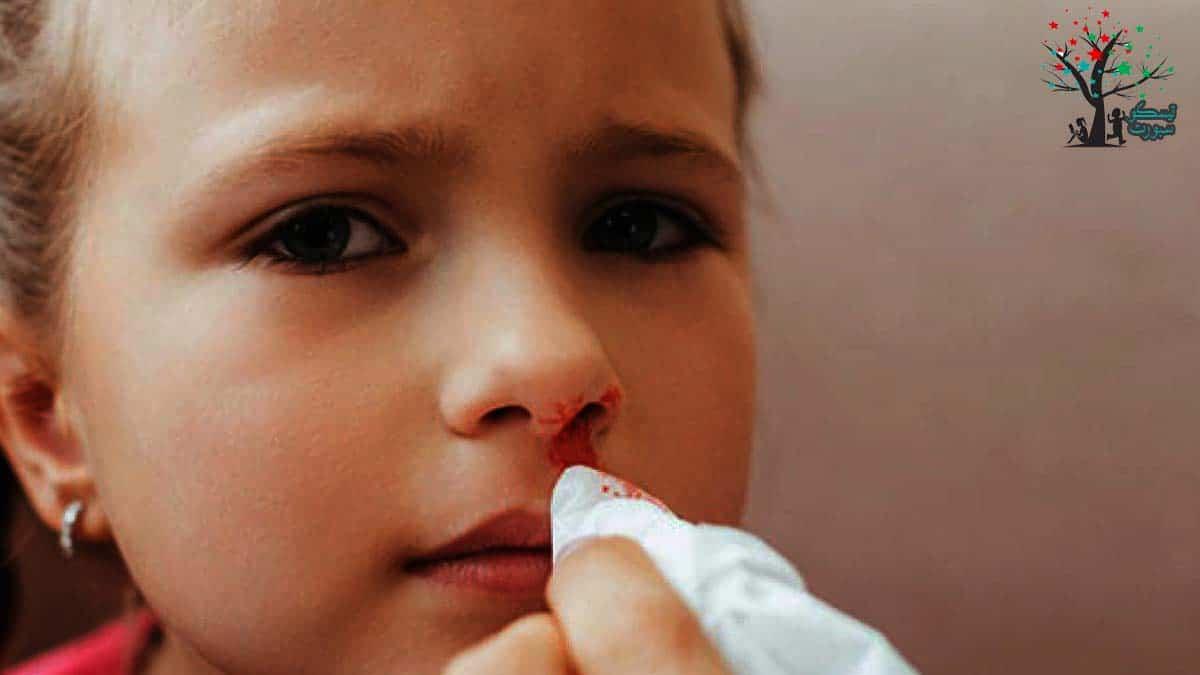 أخطاء شائعة في علاج الرعاف عند الاطفال