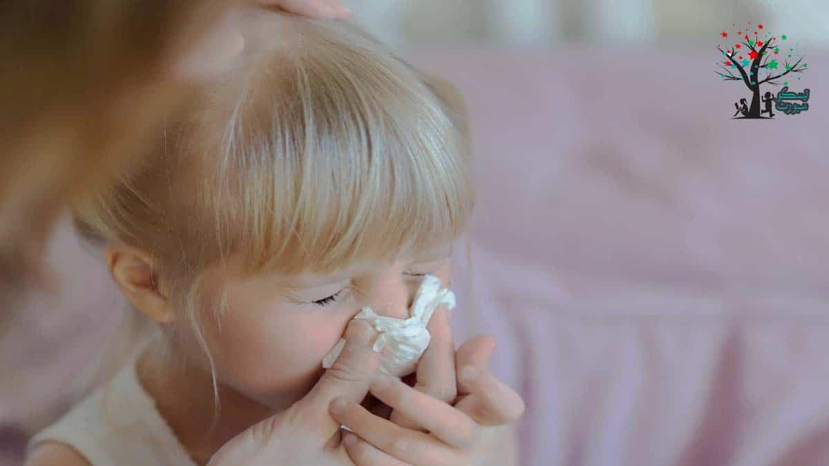 علاج الرعاف عند الاطفال